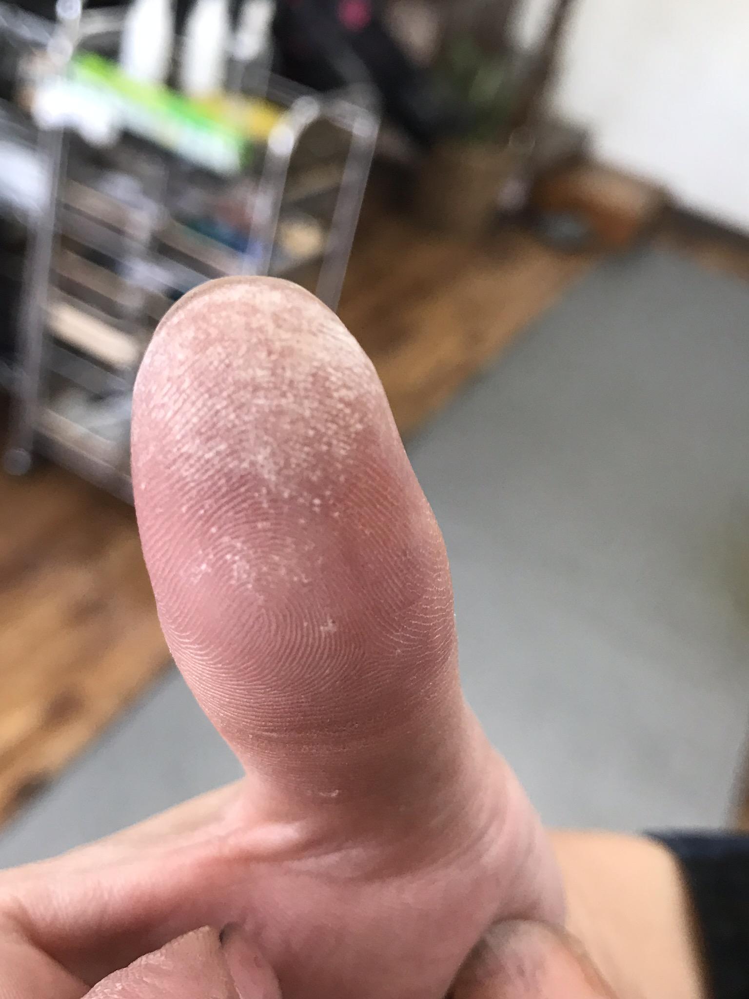 美容師あるある  忙しい時よく指が白くなって痛いよねー