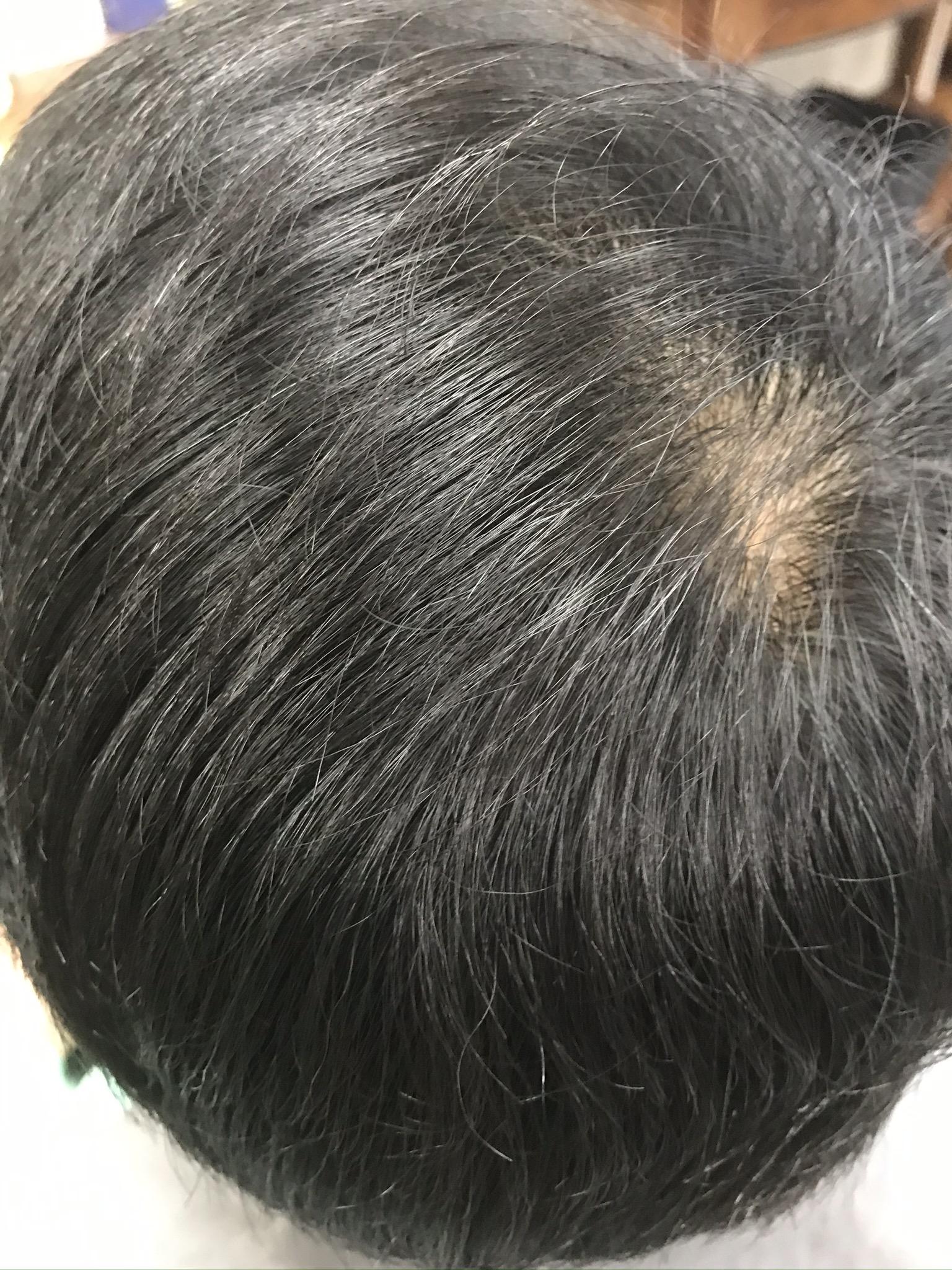 アレルギーメンズのヘナ白髪染め ヘナ1:2インディゴ
